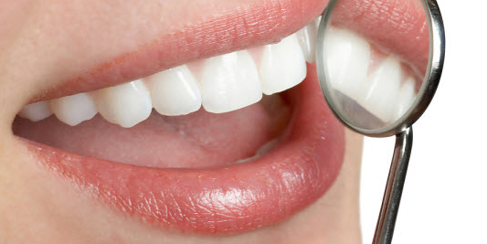 Sevilla teeth whitening
